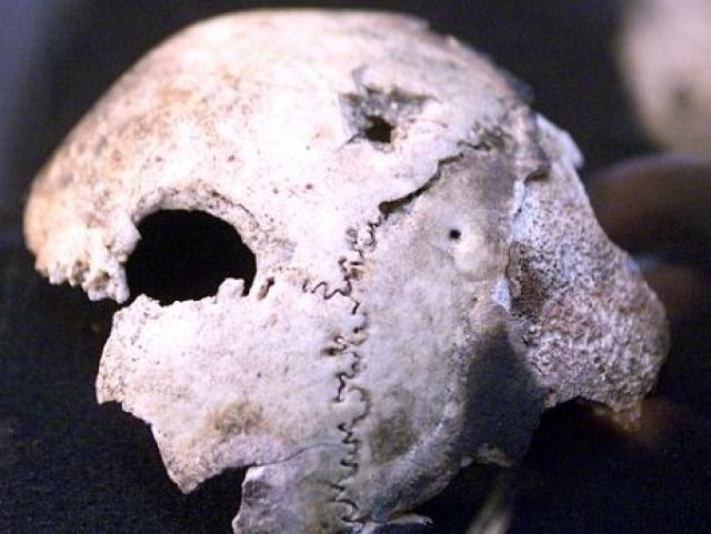 Изрядно подпорченная кость вовсе не принадлежала Адольфу Гитлеру. Она вообще не принадлежала мужчине. Это был фрагмент черепа женщины. Причем женщина в момент своей гибели находилась в самом расцвете сил. Ее возраст специалисты оценили в 35-40 лет.
