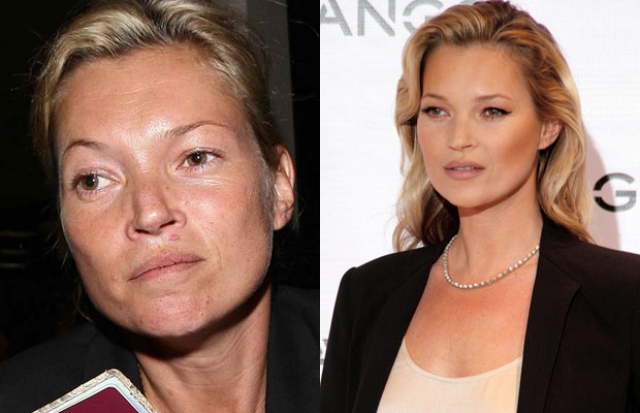 Кейт Мосс. Модель частенько появляется на людях без макияжа. Именно в такие моменты заметно, что Мосс выглядит несколько старше своих лет из-за давних вредных пристрастий.