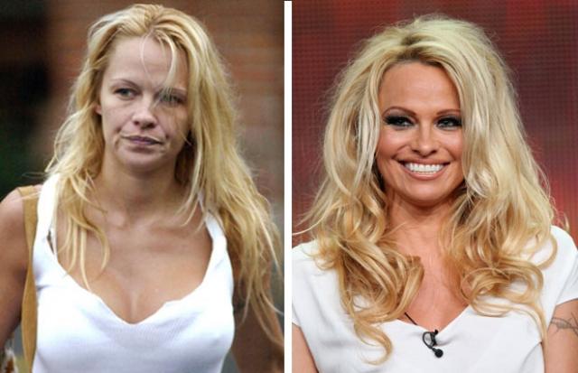 Памела Андерсон. Звезда Playboy выглядит без макияжа именно так.