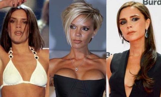 После этого критики приступили к обсуждению неестественности силиконовых форм Вики, после чего хирурги поработали над певицей вновь, уже уменьшив грудь.