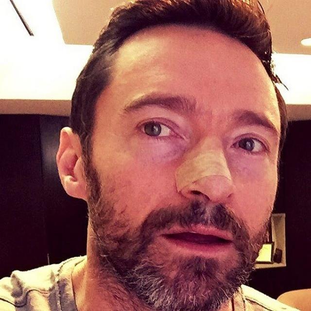 О первой опухоли Джекмана стало известно в 2013 году, и с тех пор актер не только проходил курсы химиотерапии, но и сделал шесть операций по пересадке кожи.
