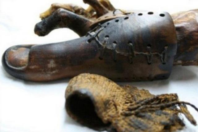 Протез. Первый протез был найден также в Египте. Палец из дерева и кожи был надет на женской мумии и датируется 950 годом до н.э.